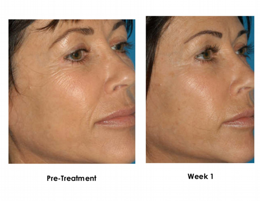 Facial Peels And Dermaplaning
