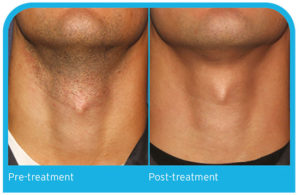 Hair Removal neck before and after