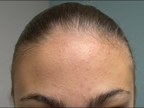 Acne In Hair >> Your Poor Pores Could Your Acne Simply Be Caused By Your Products