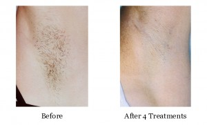 Come see how effective our state-of-the-art Palomar IPL Laser can be.