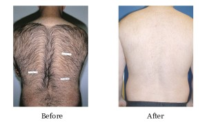 permanent hair removal, back